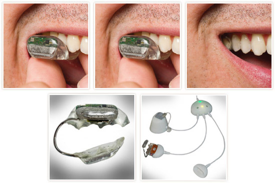 soundbite SoundBite Dental Hearing Aid Approved
