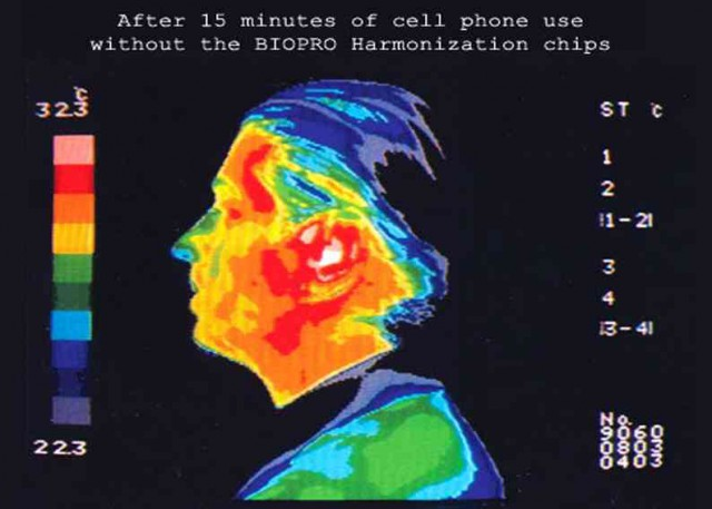 beforeBiopro30-640x457 FACT: Brain Cancer Risk Increases With Cell Phone Use