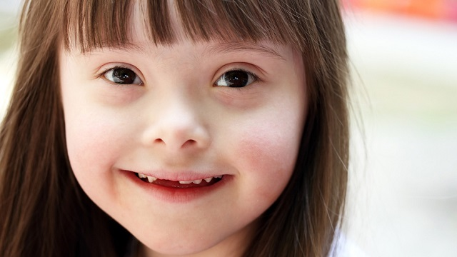 down-syndrome-xist-therapy How Gene Therapy Could Eventually Cure Down Syndrome